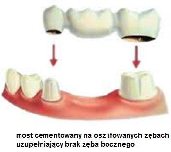 most na zębach bocznych