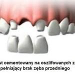 most na zębach przednich